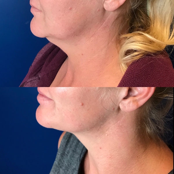 Kybella-Wendy-Before-After