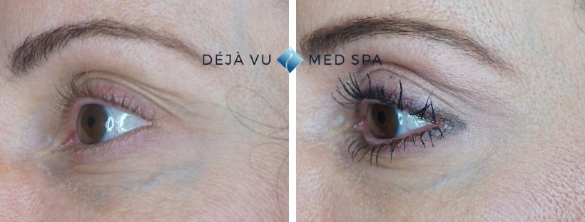 prp-facial-before-and-after-facial