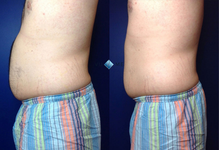 deja-vu-medspa-Arturo-coolsculpting-before-&-after-W-logo