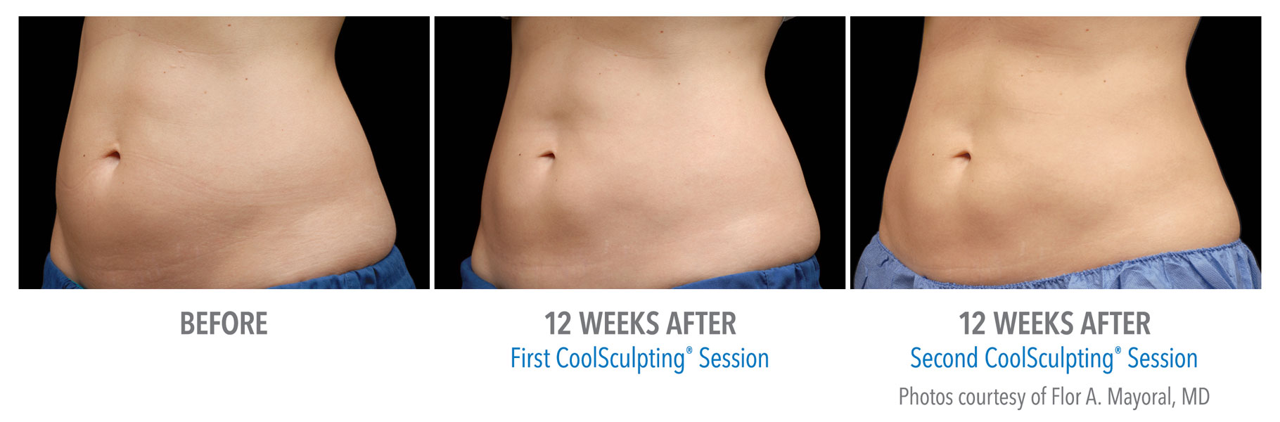Coolsculpting Near Me   Coolsculpting   Coolsculpting before and after