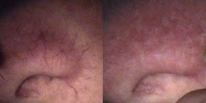 deja-vu-medspa-thermavein-before-after-11