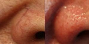 deja-vu-medspa-thermavein-before-after-4