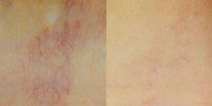 deja-vu-medspa-thermavein-before-after-7