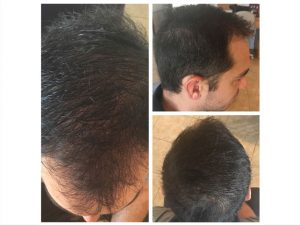 PRP-Hair-Before-and-Afters