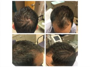 Man-PRP-Hair-Before-and-Afters