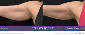 truSculpt-iD-Atlanta-Medical-Aesthetics