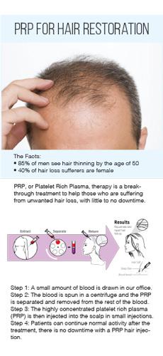 PRP-Hair-Restoration-Rack