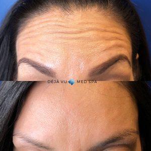 Angela-Forehead-age-40