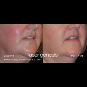 Xeo Laser Genesis for woman