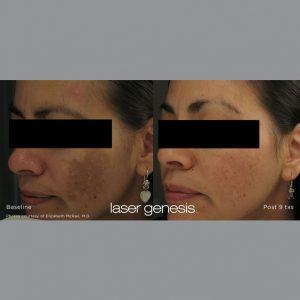 Treatment Xeo Laser