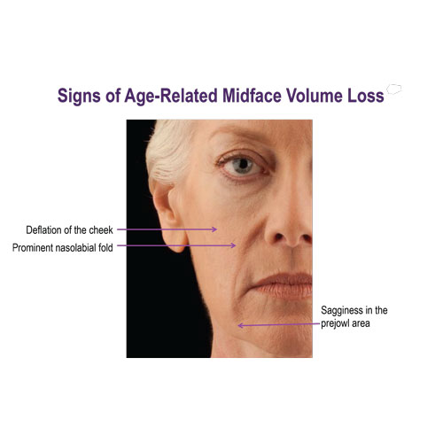 Age-related-volume-loss