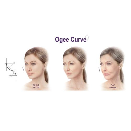 Ogee Curve