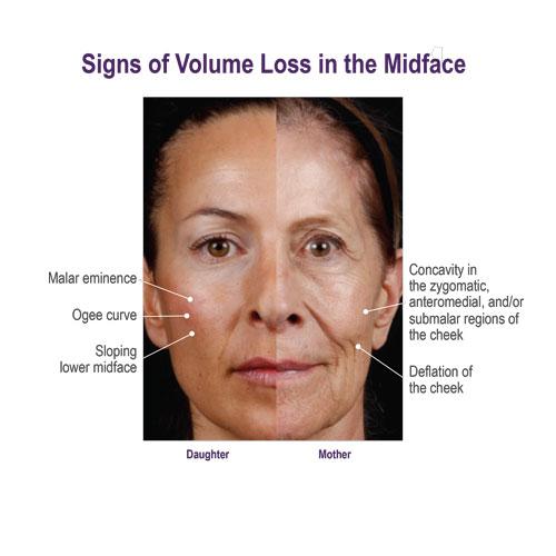 Voluma-midface-volume-loss