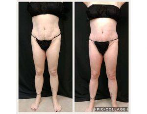 deja-vu-medspa-body-wrap-before-and-after1
