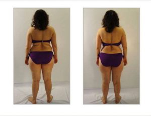 deja-vu-medspa-body-wrap-before-and-after4